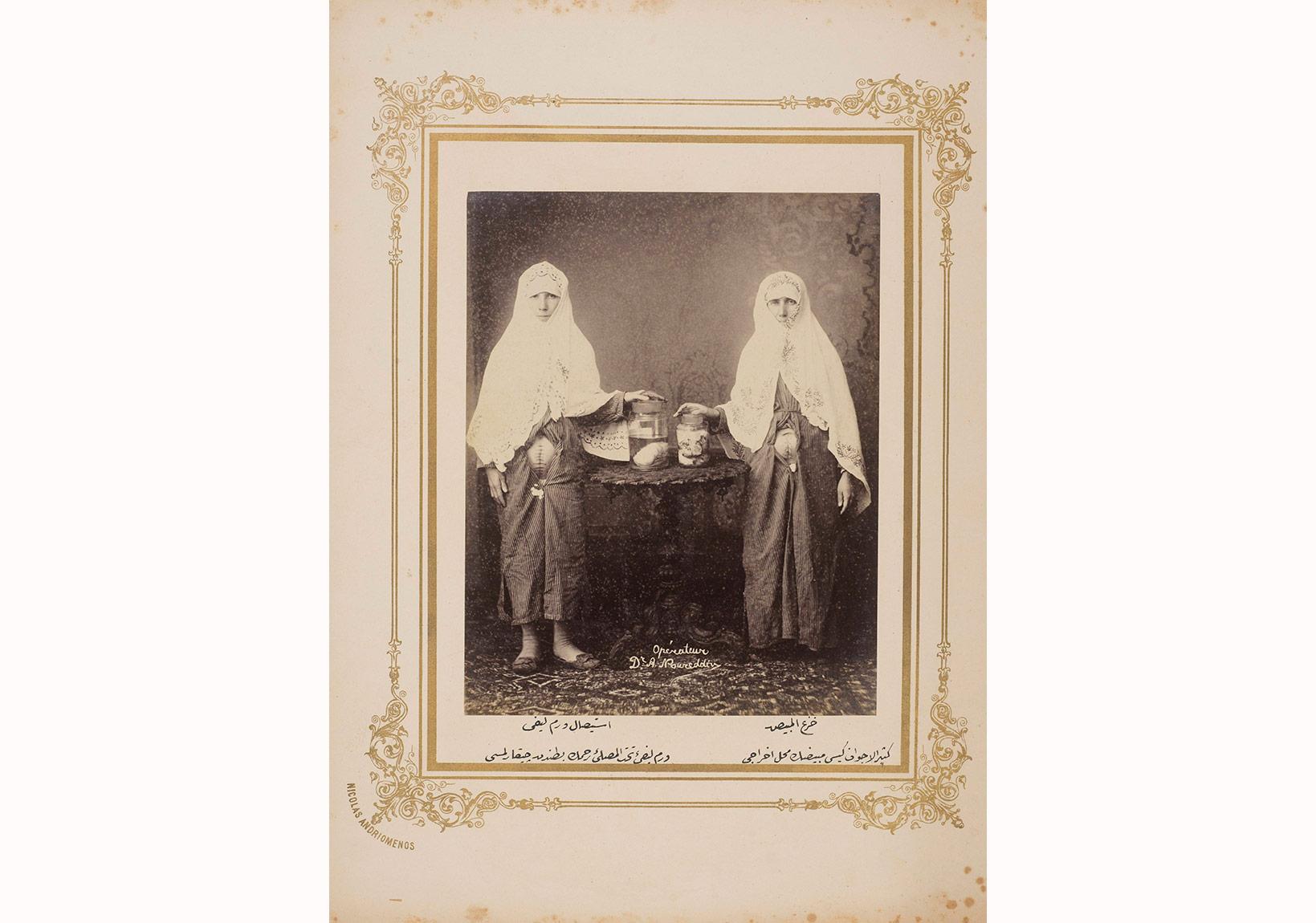 Haseki Kadın Hastanesi, Fibroid rahim uru (sol) ve multikistli yumurtalık (sağ), 1890'lar, Ömer M. Koç Koleksiyonu.